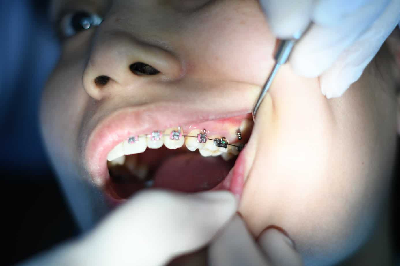 bracers aligners expectations