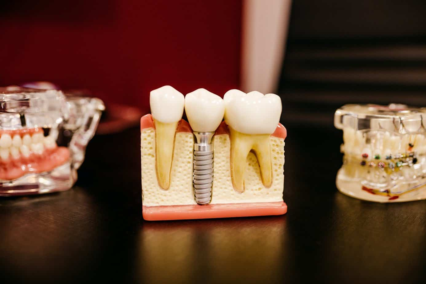 Guide to Dental Plans and Financing