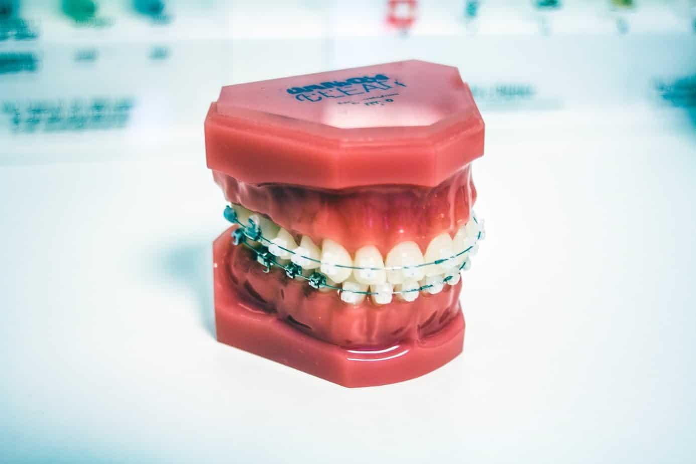 Who needs braces