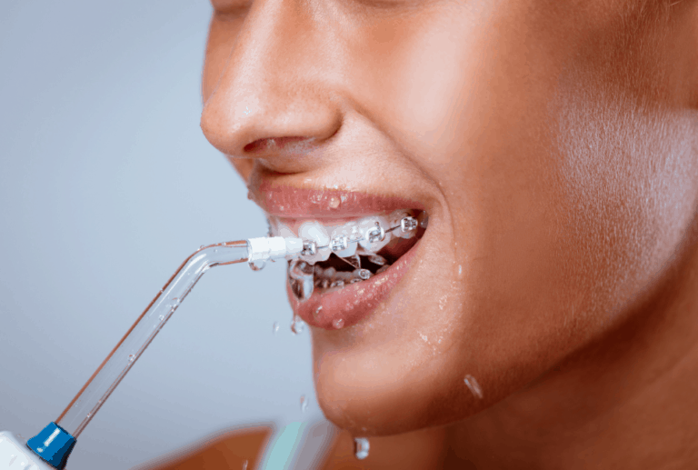 Best Water Flosser for Braces – How to Choose the Right One