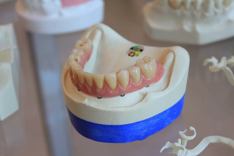 Guide to Dental Implants