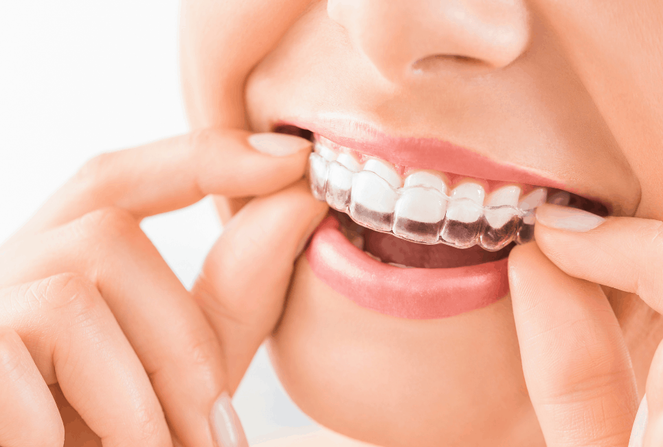 The Best Invisalign Alternatives To Consider in 2021