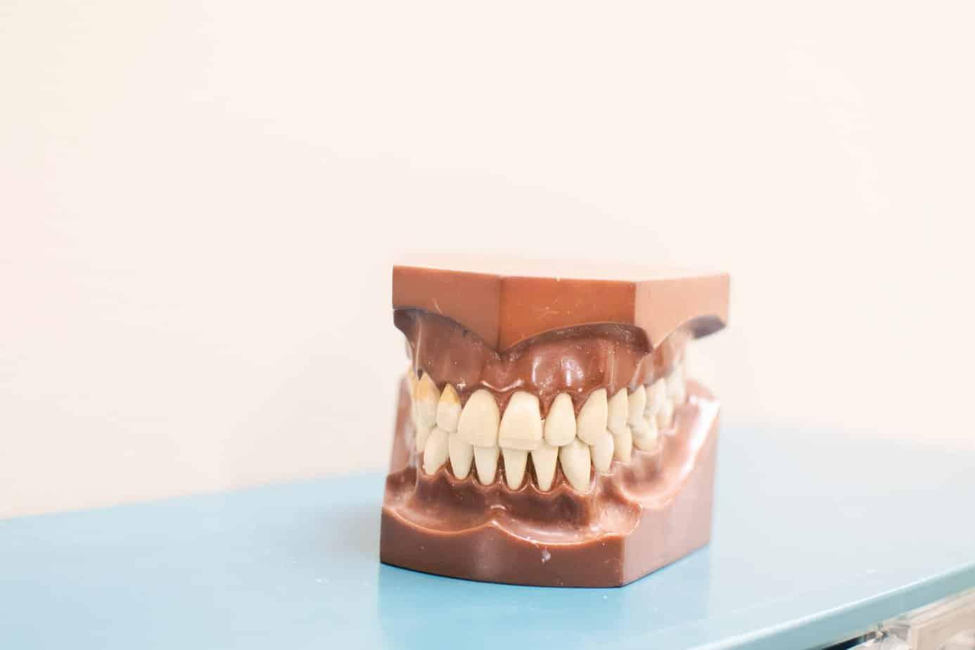 Teeth Whitening Invisalign