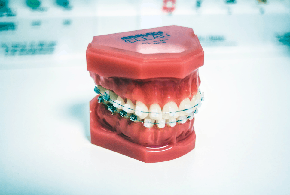 Best Toothpaste for Braces: Top 5 Picks You'll Love