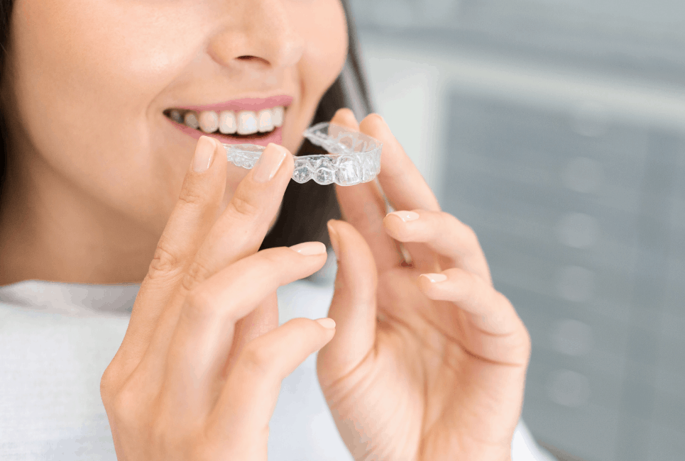 Byte vs Candid: Which Aligners are Better?