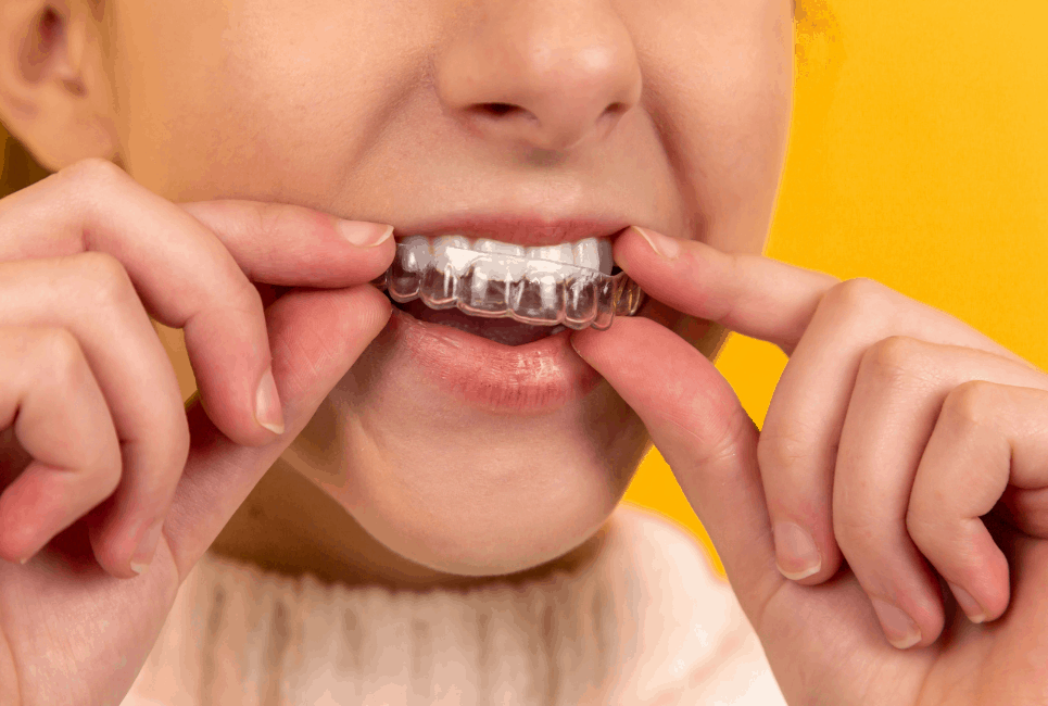 Smilelove vs Smile Direct: Which is Better?