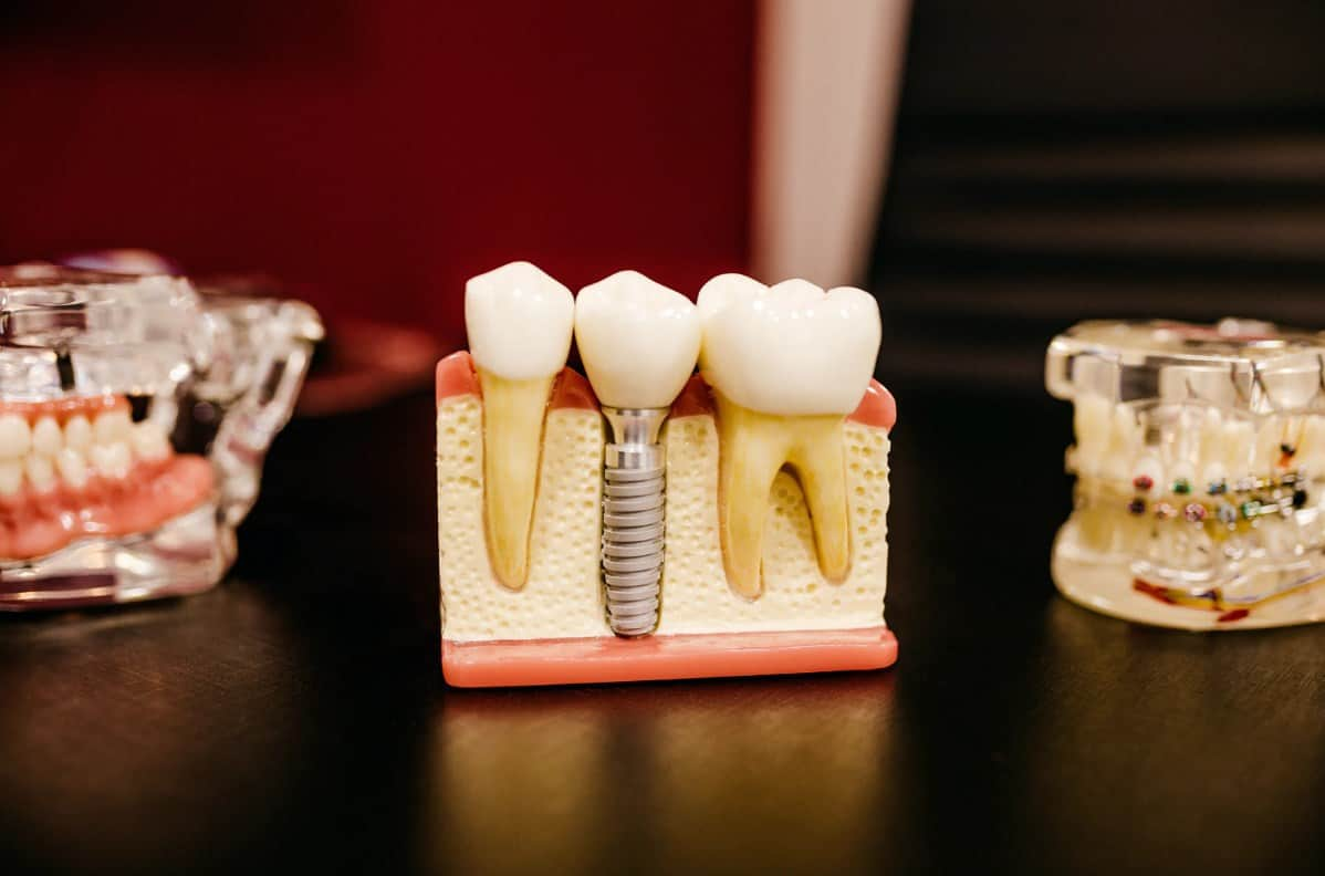 Root Canal vs Implant: What's the Difference?