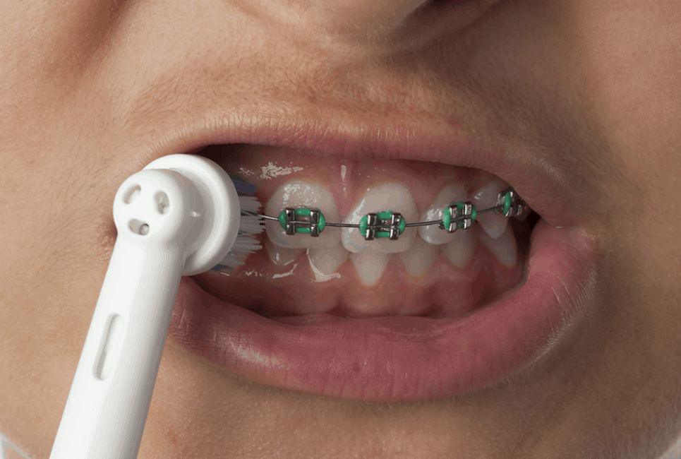 How to Find the Best Electric Toothbrush for Braces